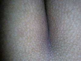 Imagen Se le eriza la piel cuando la cojo por el culo uffff